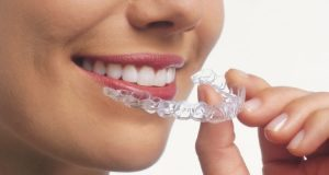 Dental Braces in Brooklyn